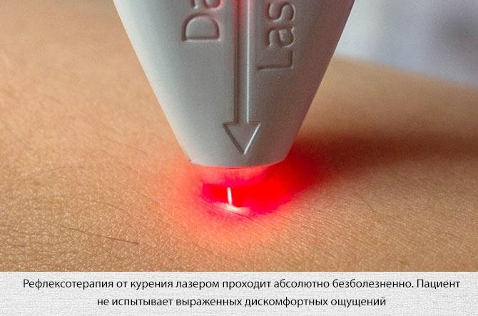 Проведение лазерной рефлексотерапии
