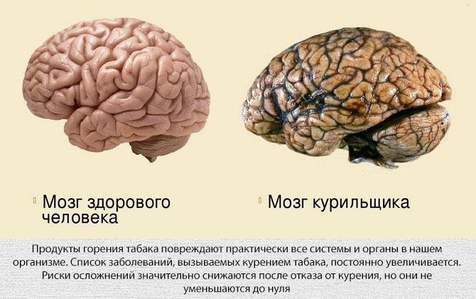 Негативные последствия курения для организма человека